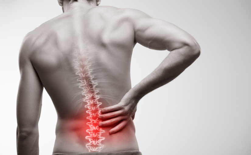Cauda equina syndrome: The 'red flag' symptoms everybody with back pain needs to know about