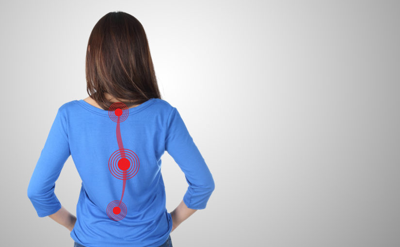 8 things you might not know about scoliosis